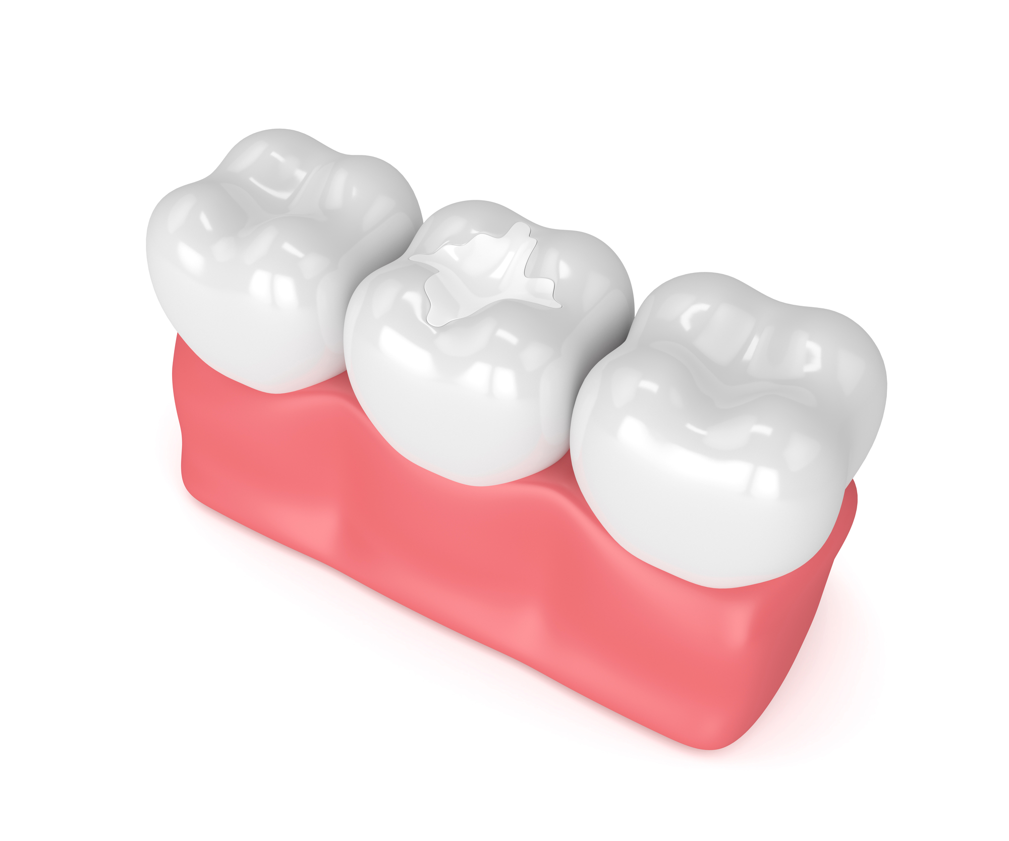 who offers dental crowns odessa fl?